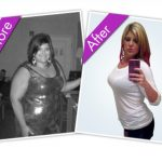 Weight Loss Before and After Pictures Fort Lauderdale, FL